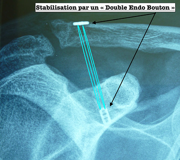 luxation-acromio-claviculaire-postop-a-12-mois.jpg