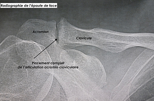 figure-2-arthropathie-ioapc-paris.jpg